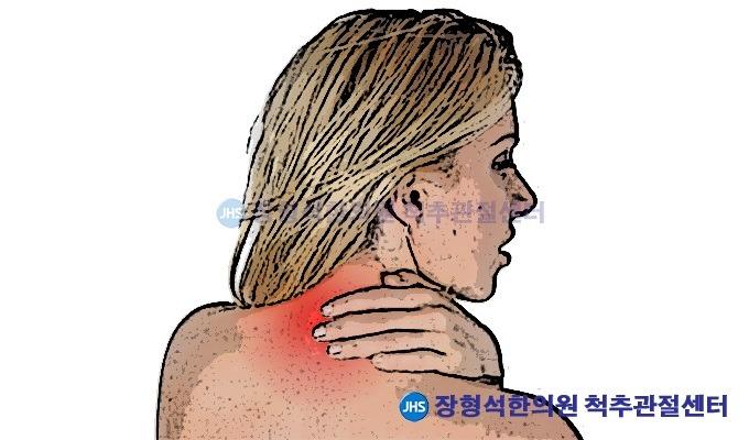 목디스크의 원인, 증상 및 치료법