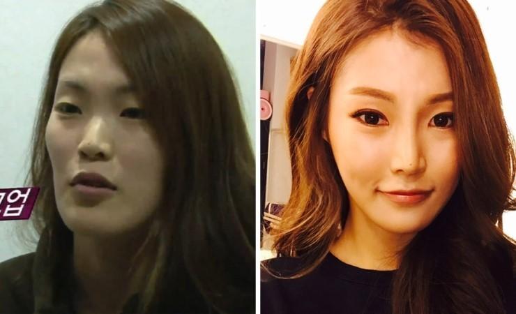 유캔비성형외과피부과 뷰티스타그램 김가람씨의 변화된 모습!